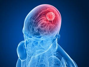 Najbardziej zagrożone udarem mózgu są osoby starsze
