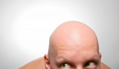Nowa oferta: turystyka dla łysiejących