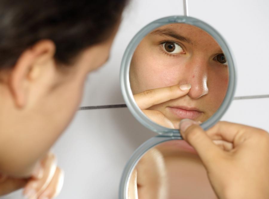 Jak leczyć trądzik?