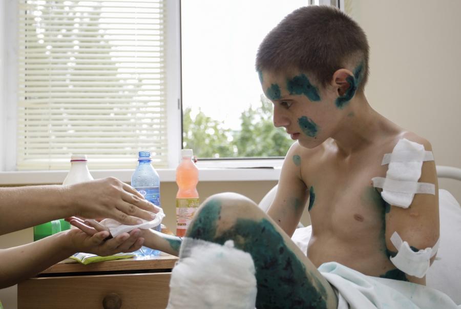 Donieck: 12-letni Andriej został wraz z dwoma kolegami ranny, gdy obok ich domu i miejsca, gdzie się bawili, wybuchł pocisk